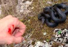 При укусе змеи что делать?