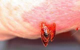 Как долго у человека проходит укус клопа