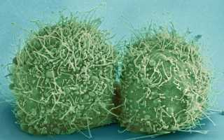 Cиндром эндогенной интоксикации