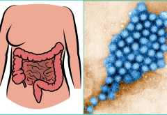 Может ли быть ротавирус без поноса