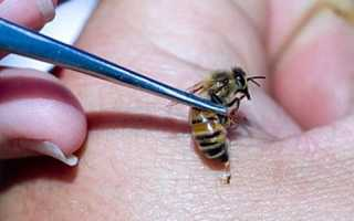 Лечение пчелиными укусами
