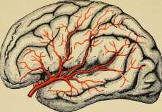 Как правильно чистить сосуды головного мозга
