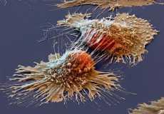 Что такое раковая интоксикация
