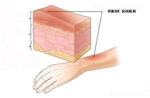 Внешнее облучение-ожог кожи
