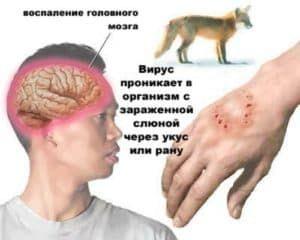 Вирус бешенства после укуса собаки