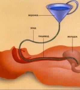 Промывание желудка с помощью зонда