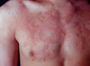 Аллергическая реакция на лекарственный препарат