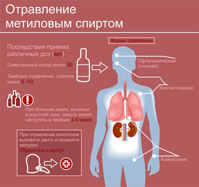 Отравление метиловым спиртом – симптомы, первая помощь, лечение, последствия