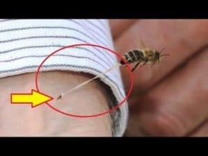 У пчелы после укуса жало застряло в коже человека