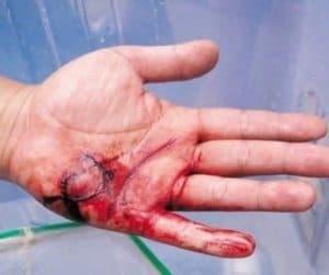 Рана после укуса собаки
