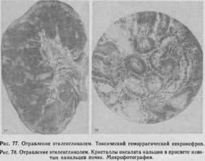 Воздействие этиленгликоля на почки