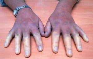 Синюшность кожи