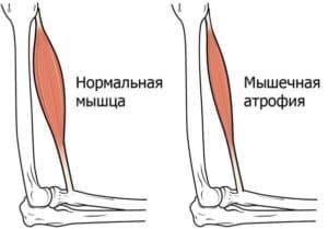 Мышечная атрофия