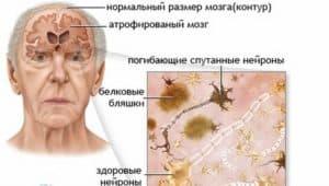 Смерть нейронов головного мозга