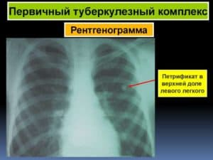 Первичный туберкулезный комплекс на рентгенограмме