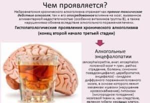 Симптомы алкогольной энцефалопатии