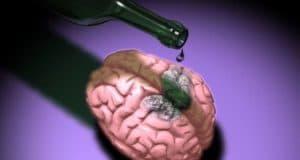 Алкогольная интоксикация как причина токсической энцефалопатии