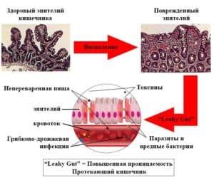 Всасывание токсинов из кишечника в кровь