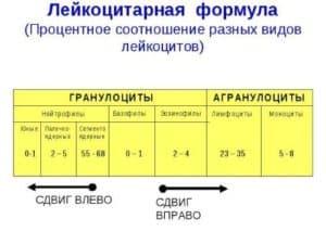 Сдвиги лейкоцитараной формулы вправо и влево