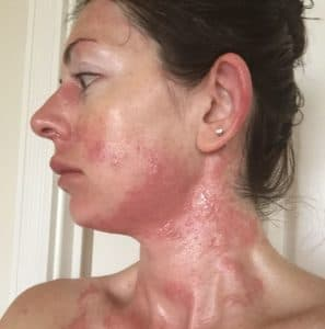 Кожная сыпь, гиперемия кожи