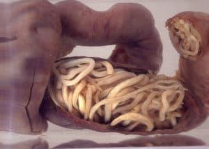 Часть кишечника, заполненная паразитами