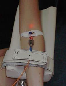 Внутривенное лазерное освечивание крови