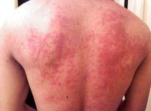 Аллергия с сыпью