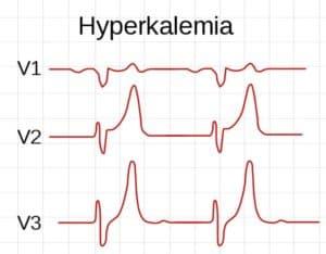 Электрокардиограмма при гиперкалиемии