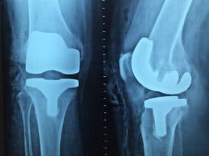 Рентген при остеопорозе