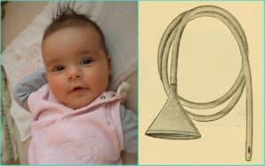 Ребенок и желудочный зонд с воронкой