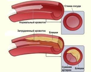 Здоровый сосуд и сосуд с холестериновыми бляшками