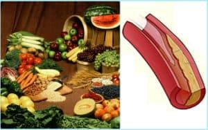 Продукты и сосуд с холестериновыми бляшками