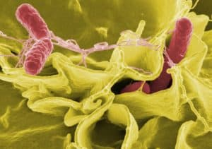 Проникновение бактерии сальмонеллы в культивируемые клетки человека