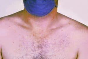 Розовые пятна на груди больного брюшным тифом